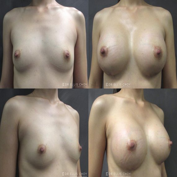 Asian breast augmentation - Dr Choy 隆胸手术前后对比图库
